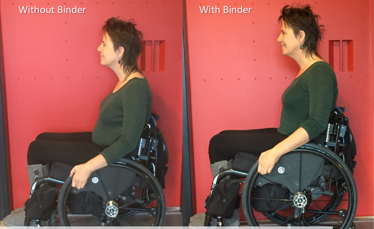 Preventing asymmetrical posture with a Corset